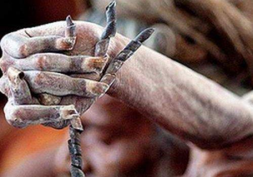В Индии живет человек, который 38 лет не опускал руку